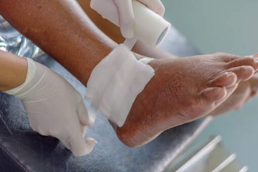 Get the Best Treatment for Gout
